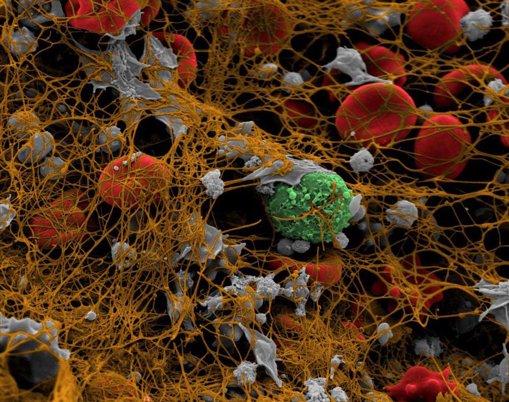 blood clotting enzyme essay