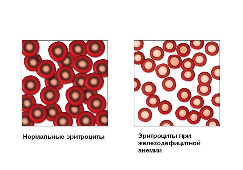 Эритроцитоз фото